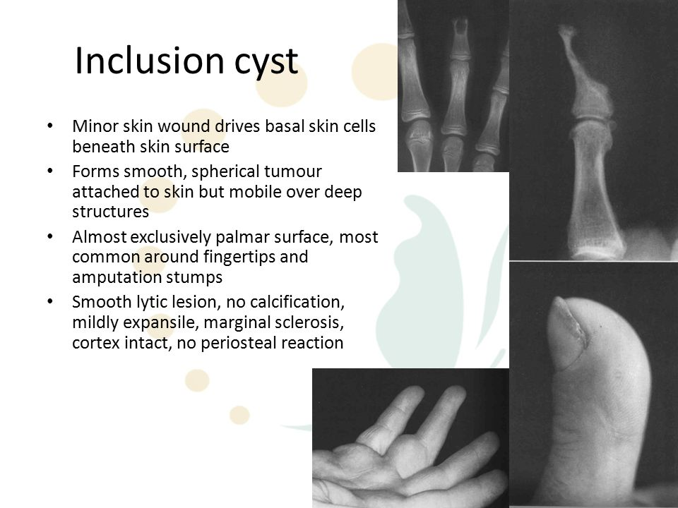 Inclusion cyst Minor skin wound drives basal skin cells beneath skin surface Forms smooth, spherical tumour attached to skin but mobile over deep structures Almost exclusively palmar surface, most common around fingertips and amputation stumps Smooth lytic lesion, no calcification, mildly expansile, marginal sclerosis, cortex intact, no periosteal reaction