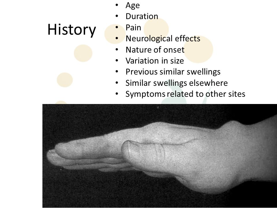History Age Duration Pain Neurological effects Nature of onset Variation in size Previous similar swellings Similar swellings elsewhere Symptoms related to other sites