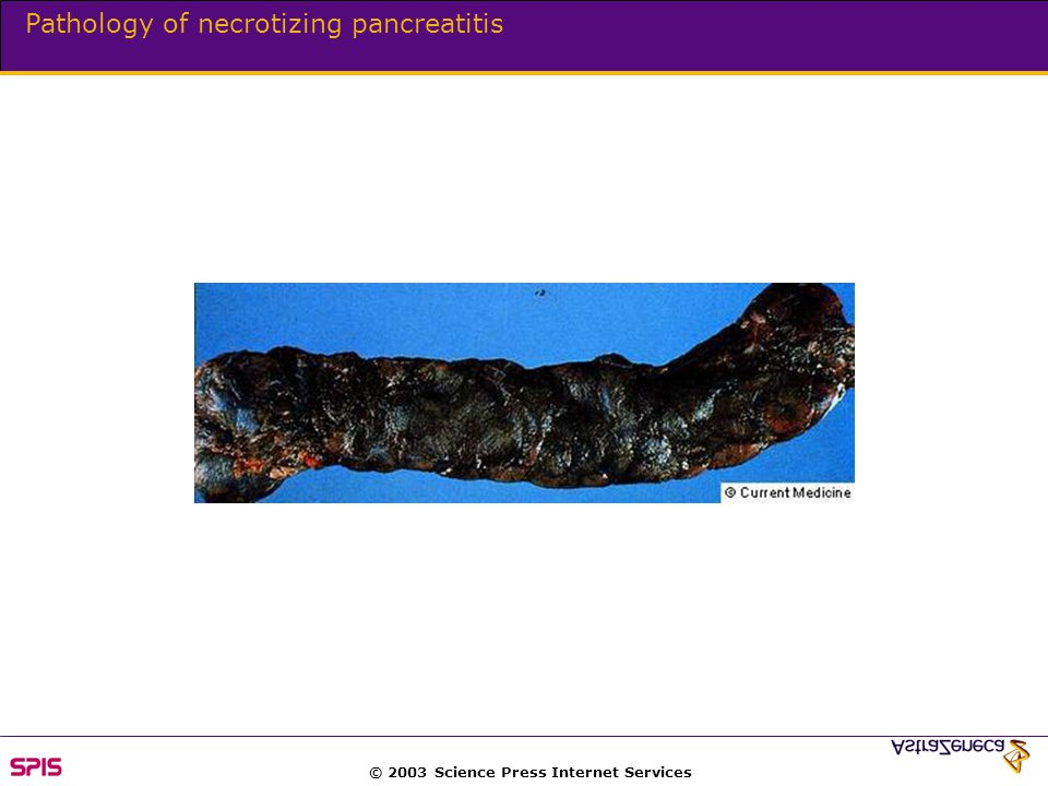 © 2003 Science Press Internet Services Pathology of necrotizing pancreatitis