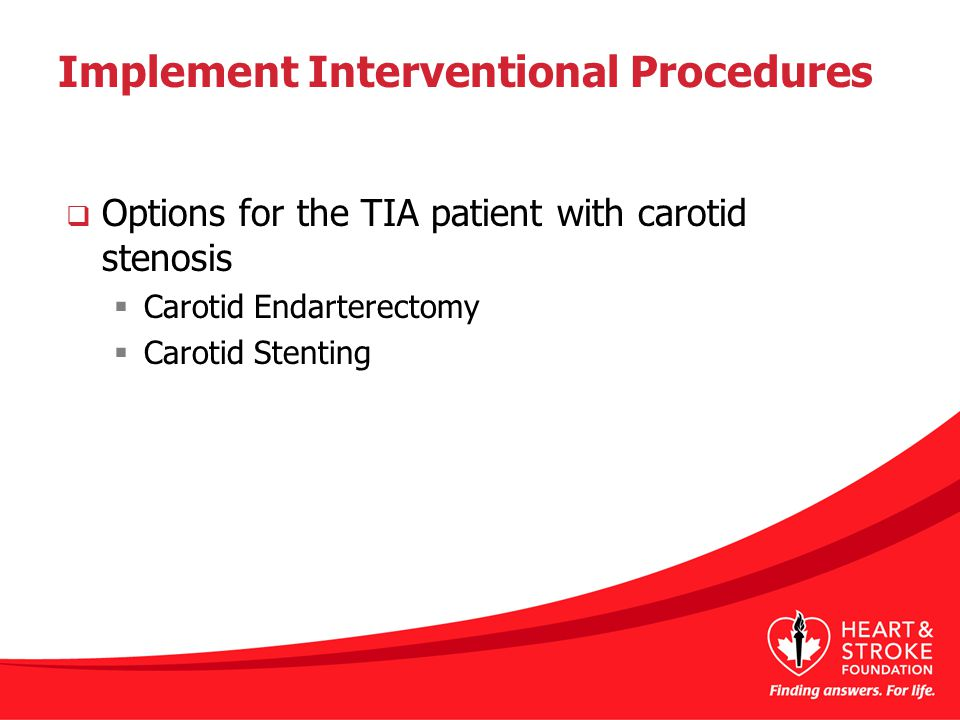 Implement Interventional Procedures  Options for the TIA patient with carotid stenosis  Carotid Endarterectomy  Carotid Stenting