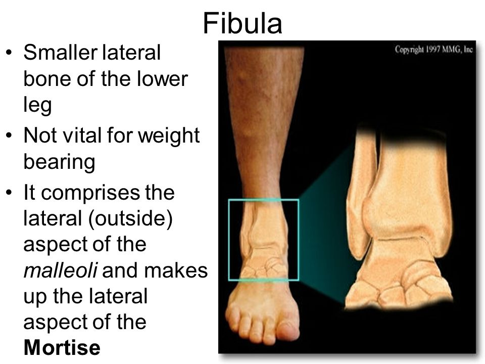 Fibula Smaller lateral bone of the lower leg Not vital for weight bearing It comprises the lateral (outside) aspect of the malleoli and makes up the lateral aspect of the Mortise