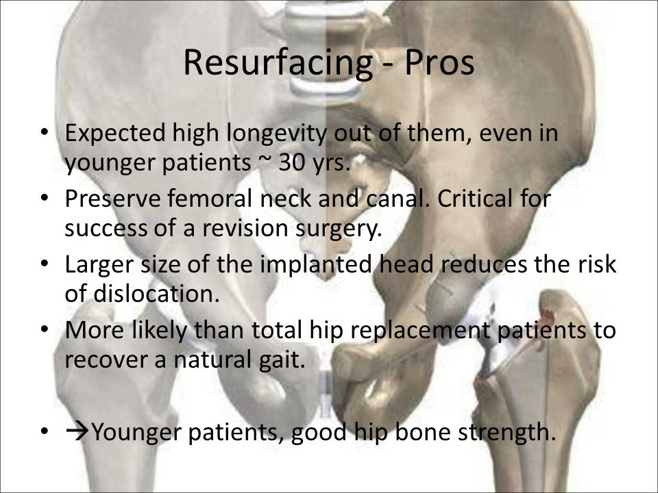 Hip Arthroplasty Chris Oser. Presentation Why hip replacement? How ...