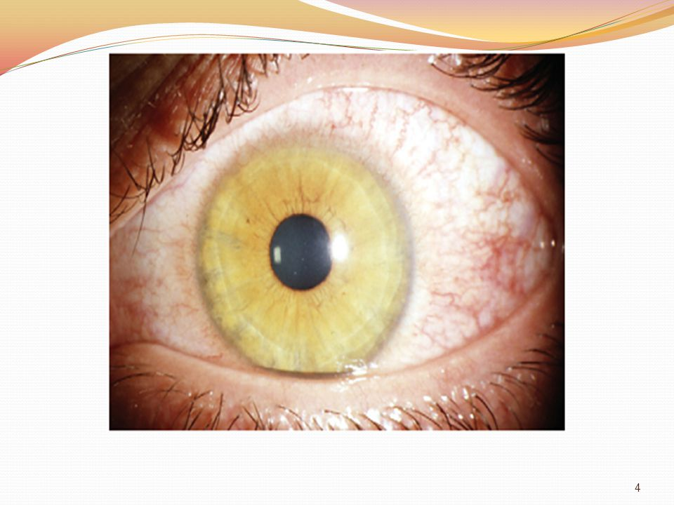 Outer eye ball coat cornea and sclera - ppt video online download