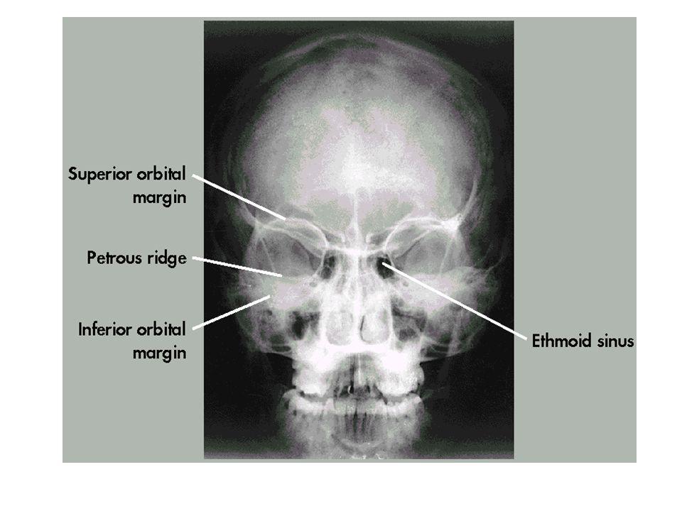 Rad 270 Skull Lecture. - ppt video online download