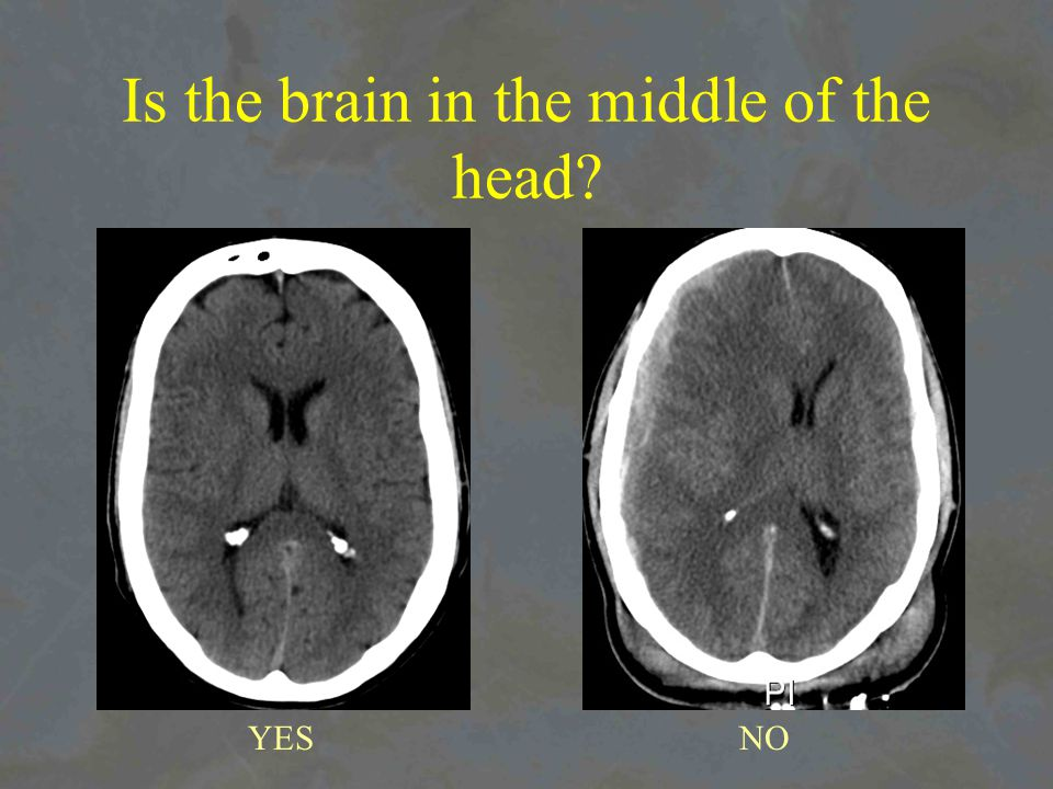 Is the brain in the middle of the head YESNO