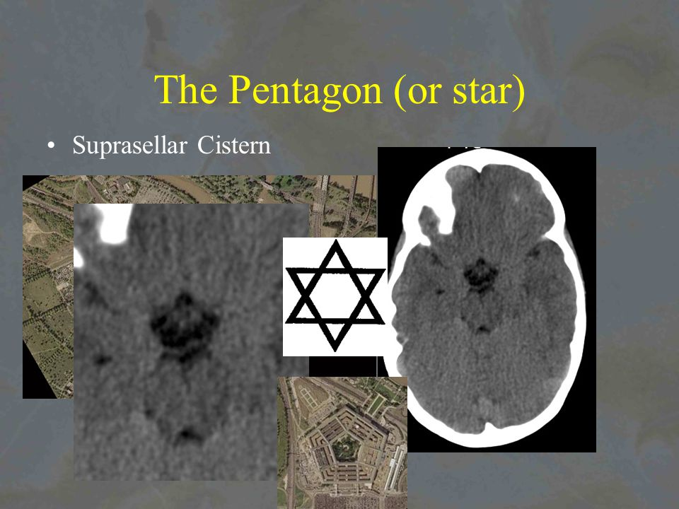 The Pentagon (or star) Suprasellar Cistern