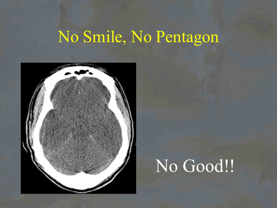 No Smile, No Pentagon No Good!!
