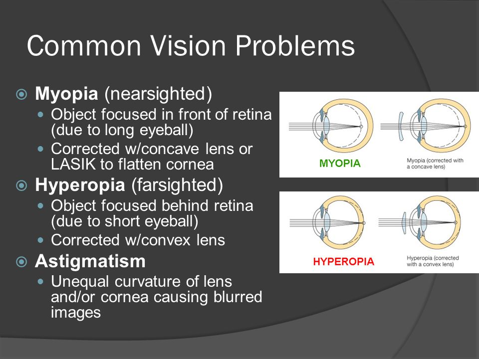 Common Vision Problems  Myopia (nearsighted) Object focused in front of retina (due to long eyeball) Corrected w/concave lens or LASIK to flatten cornea  Hyperopia (farsighted) Object focused behind retina (due to short eyeball) Corrected w/convex lens  Astigmatism Unequal curvature of lens and/or cornea causing blurred images