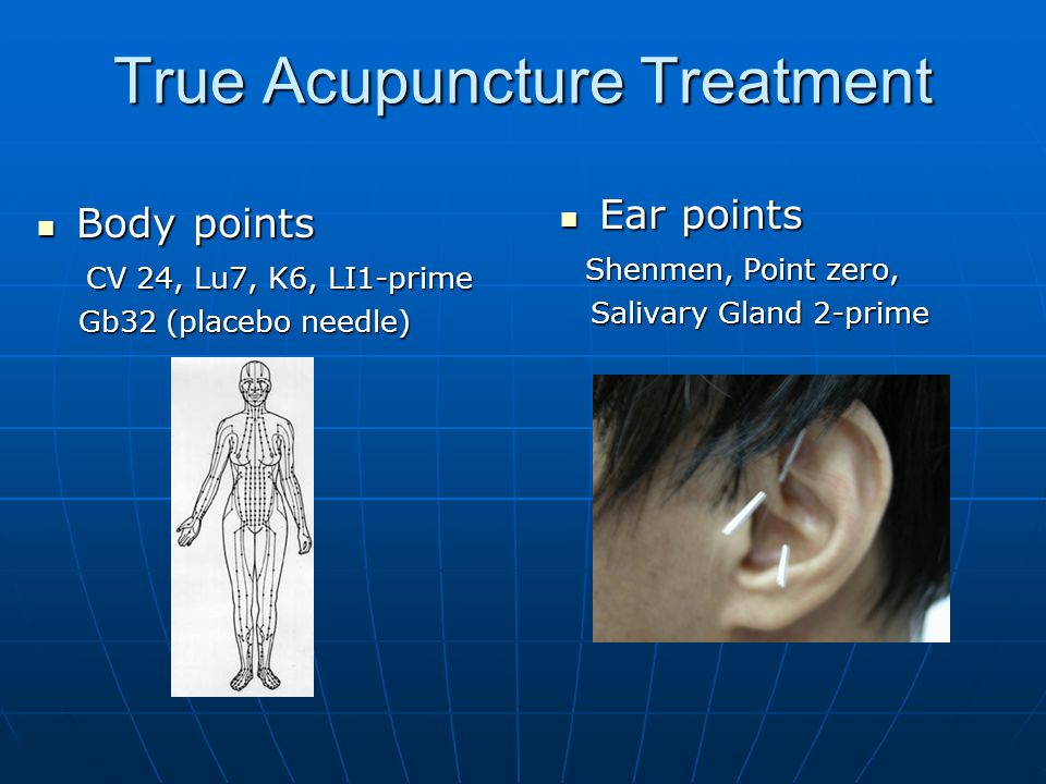 A Phase III Prospective Randomized Trial of Acupuncture for