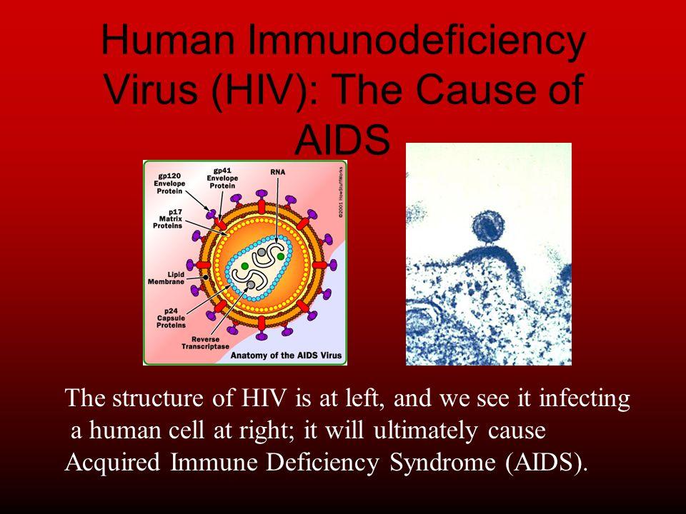 HIV Human Immunodeficiency Virus Tyler Hinkle Petia Zamfirova Anita ...