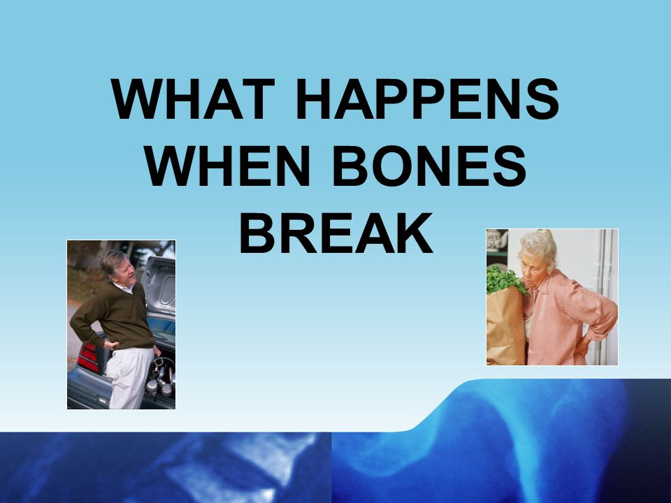 Women: Role of Estrogen Hormone that protects against bone loss After menopause, estrogen production decreases – may lead to rapid bone loss Rate of Bone Loss in Postmenopausal Women –1% to 2% annual loss for 10 years after menopause –Fastest in first 3 to 6 years