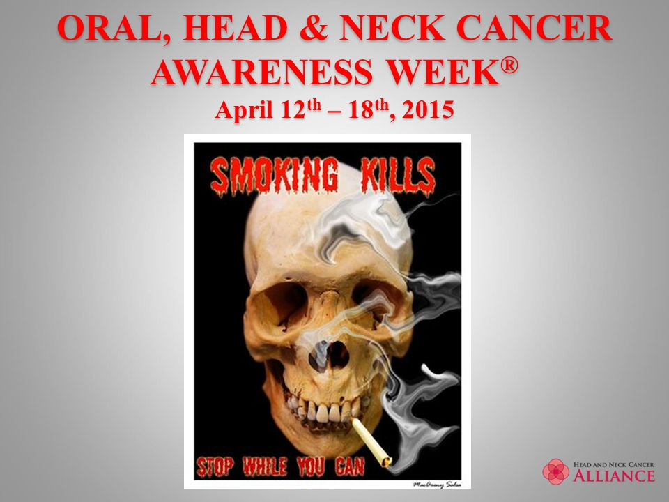 ORAL, HEAD & NECK CANCER AWARENESS WEEK ® April 12 th – 18 th, 2015