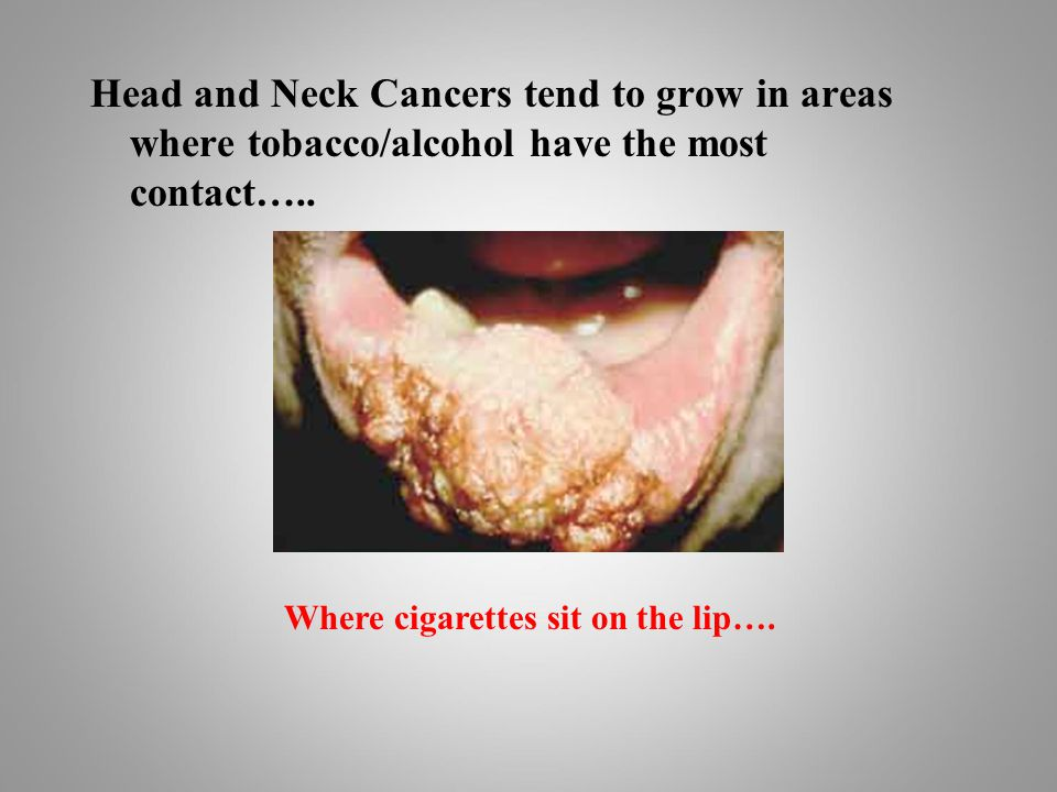Head and Neck Cancers tend to grow in areas where tobacco/alcohol have the most contact…..