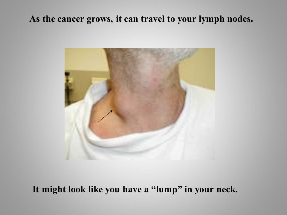 As the cancer grows, it can travel to your lymph nodes.