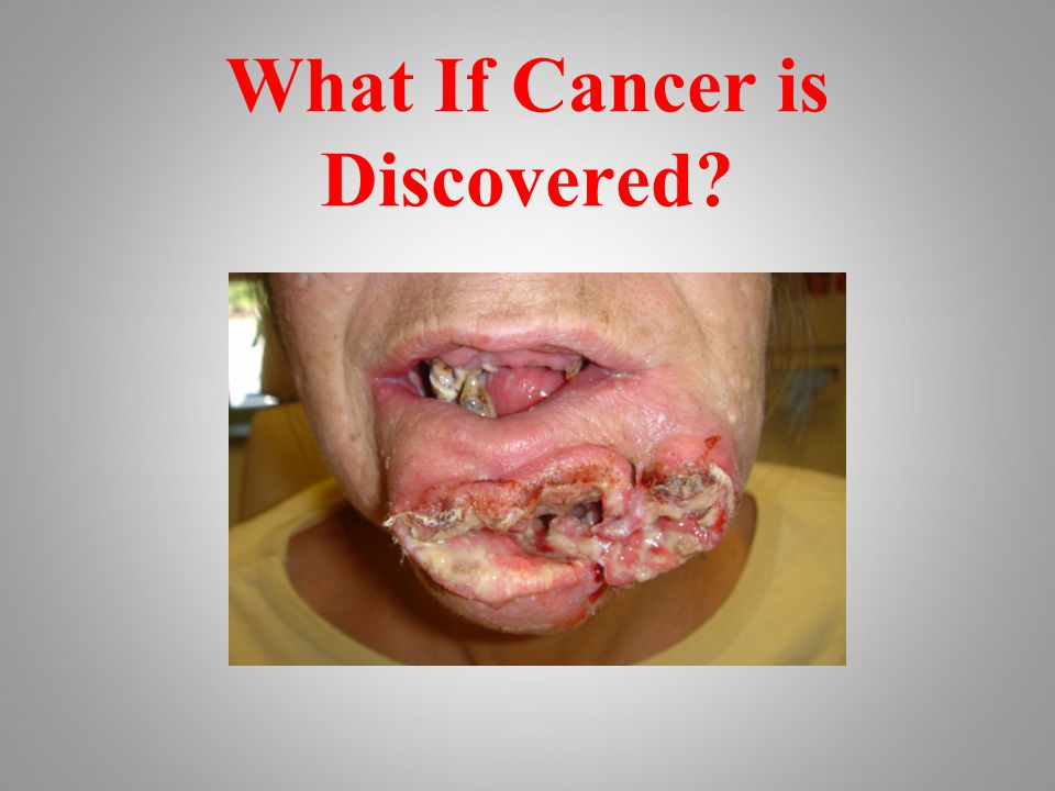 What If Cancer is Discovered