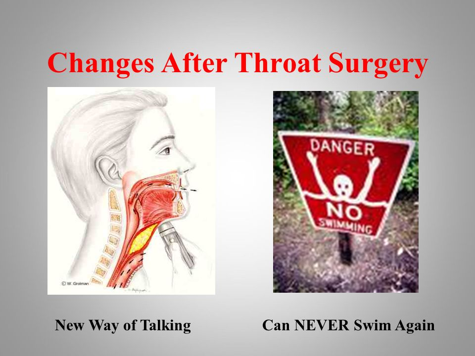 Changes After Throat Surgery New Way of TalkingCan NEVER Swim Again