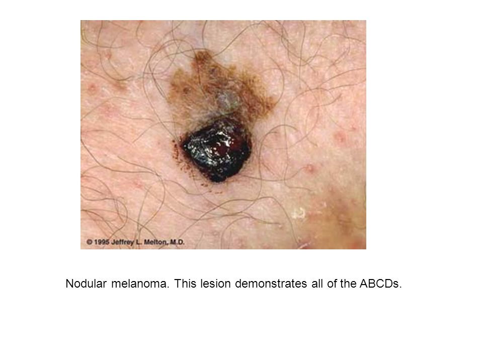 Nodular melanoma. This lesion demonstrates all of the ABCDs.