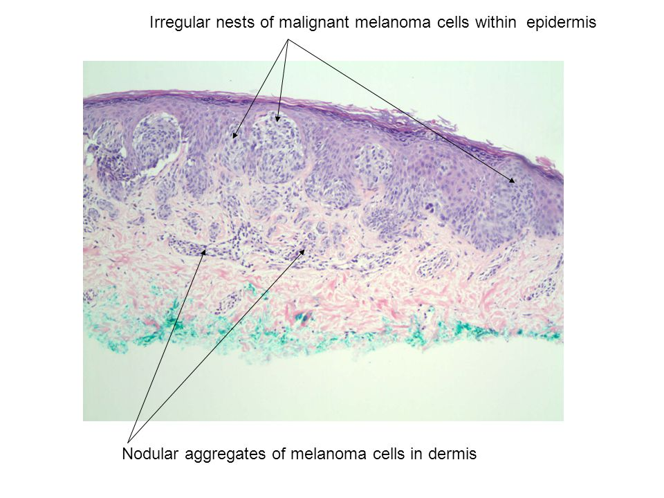 Irregular nests of malignant melanoma cells within epidermis Nodular aggregates of melanoma cells in dermis
