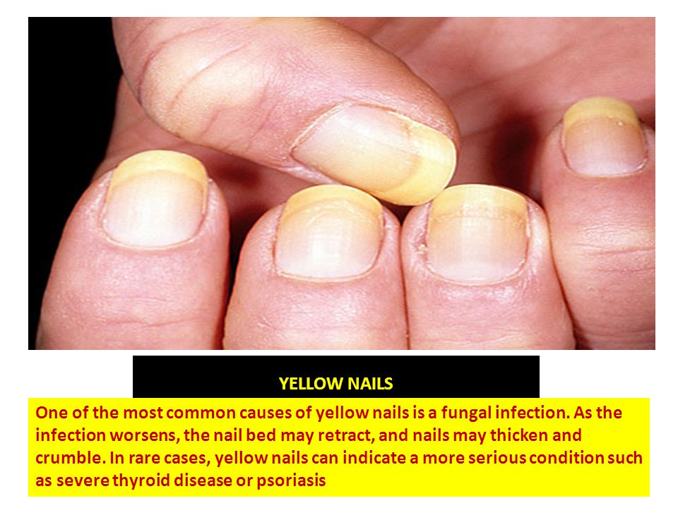 Know Your Health From Your Finger Nails Did You Know Your Nails