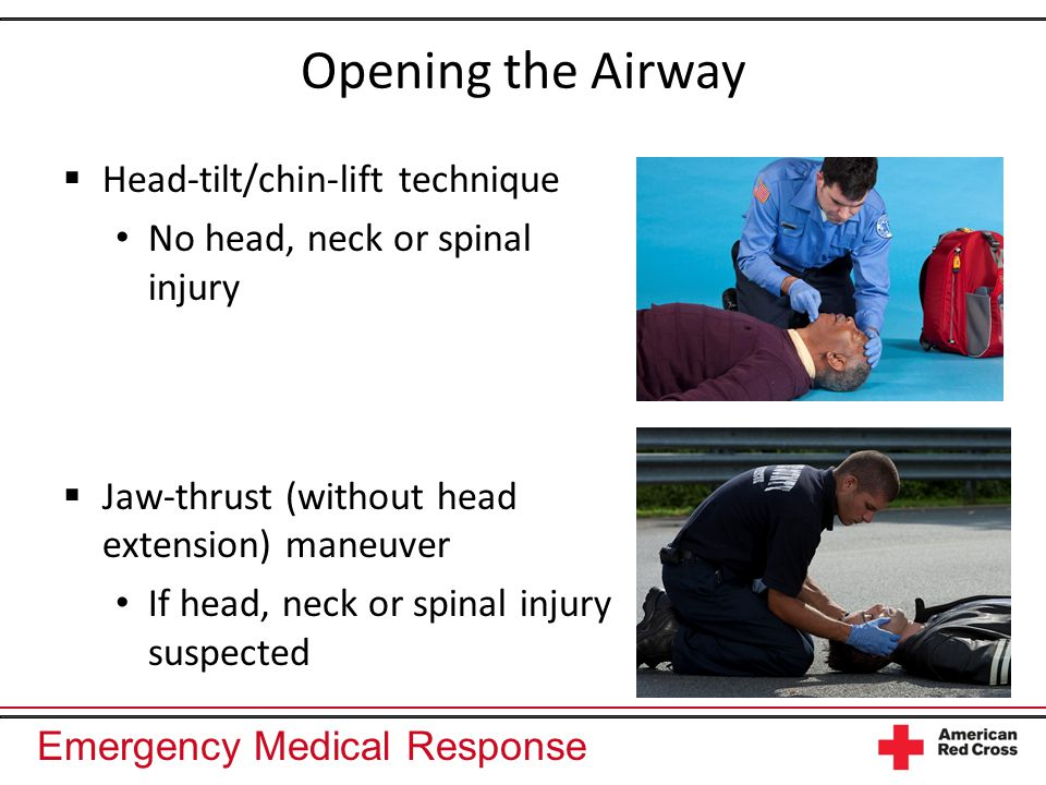 Emergency Medical Response Opening the Airway  Head-tilt/chin-lift technique No head, neck or spinal injury  Jaw-thrust (without head extension) maneuver If head, neck or spinal injury suspected