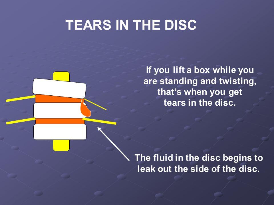 If you lift a box while you are standing and twisting, that's when you get tears in the disc.