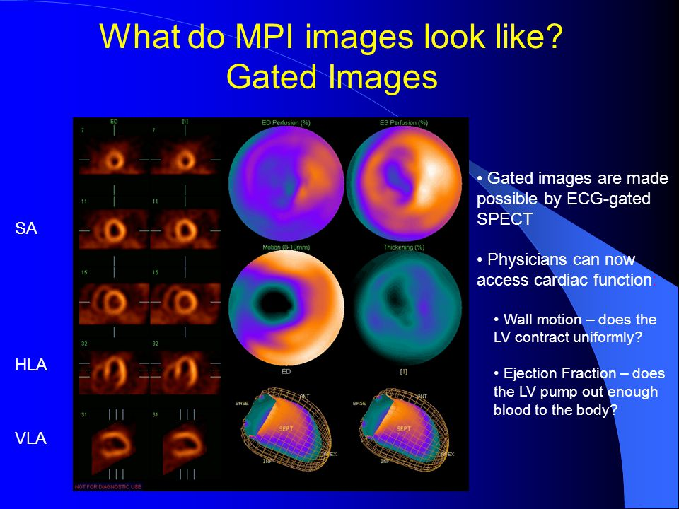 What do MPI images look like.