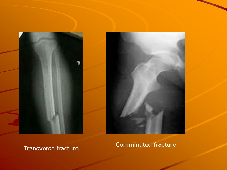 Transverse fracture Comminuted fracture