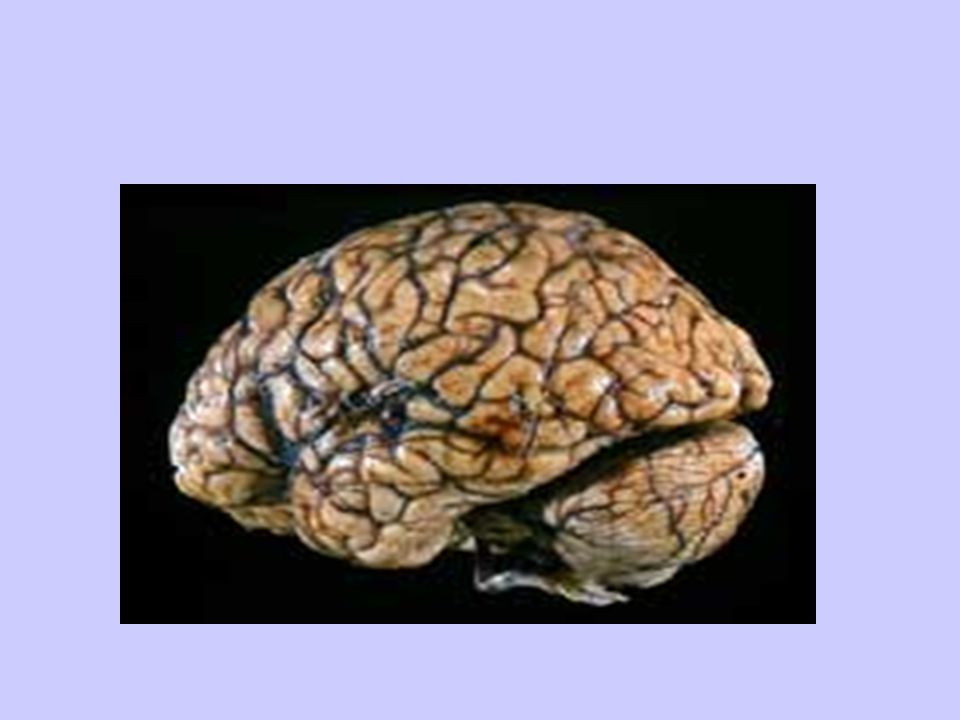 Brain Dominance Right Brain –non-verbal –Concrete –Holistic (big pic) –Intuitive –spontaneous Left Brain –Logical –Language –Verbal –Sequential/linear (Math) –Abstract…math/science –Planner