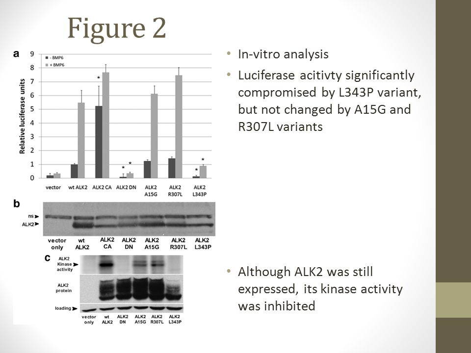 Figure 2 In-vitro analysis Luciferase acitivty significantly compromised by L343P variant, but not changed by A15G and R307L variants Although ALK2 was still expressed, its kinase activity was inhibited