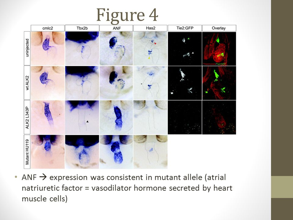 Figure 4 ANF  expression was consistent in mutant allele (atrial natriuretic factor = vasodilator hormone secreted by heart muscle cells)