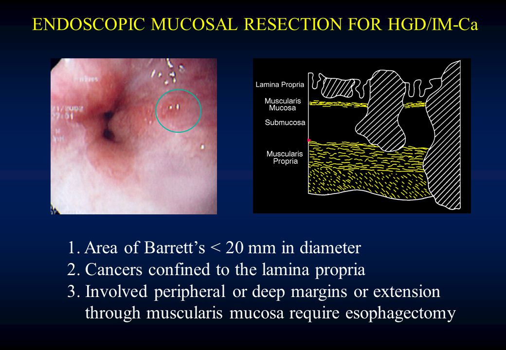ENDOSCOPIC MUCOSAL RESECTION FOR HGD/IM-Ca 1. Area of Barrett's < 20 mm in diameter 2.