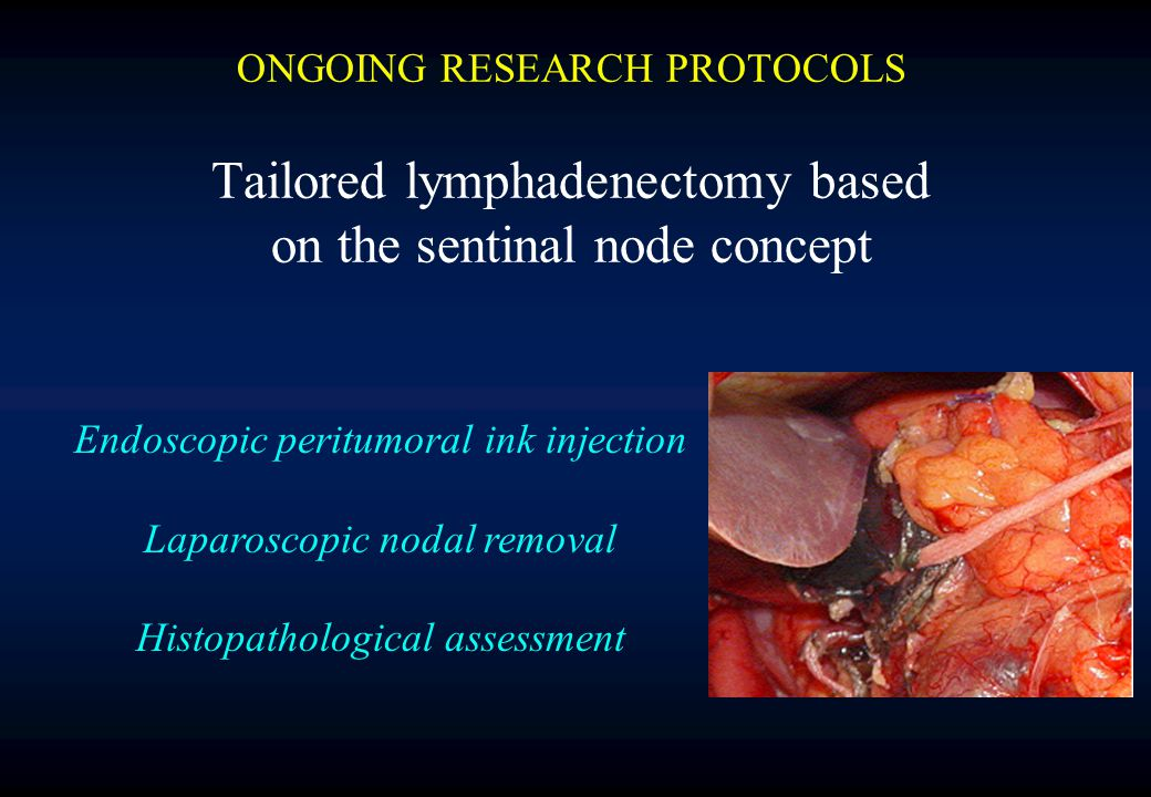 ONGOING RESEARCH PROTOCOLS Tailored lymphadenectomy based on the sentinal node concept Endoscopic peritumoral ink injection Laparoscopic nodal removal Histopathological assessment