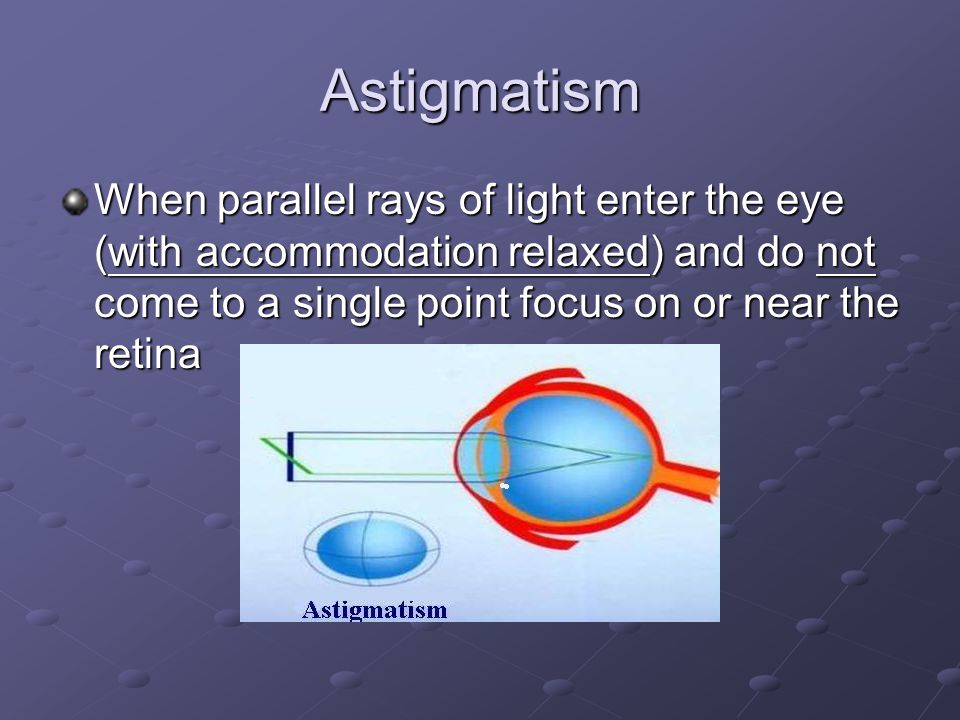 Astigmatism When parallel rays of light enter the eye (with accommodation relaxed) and do not come to a single point focus on or near the retina