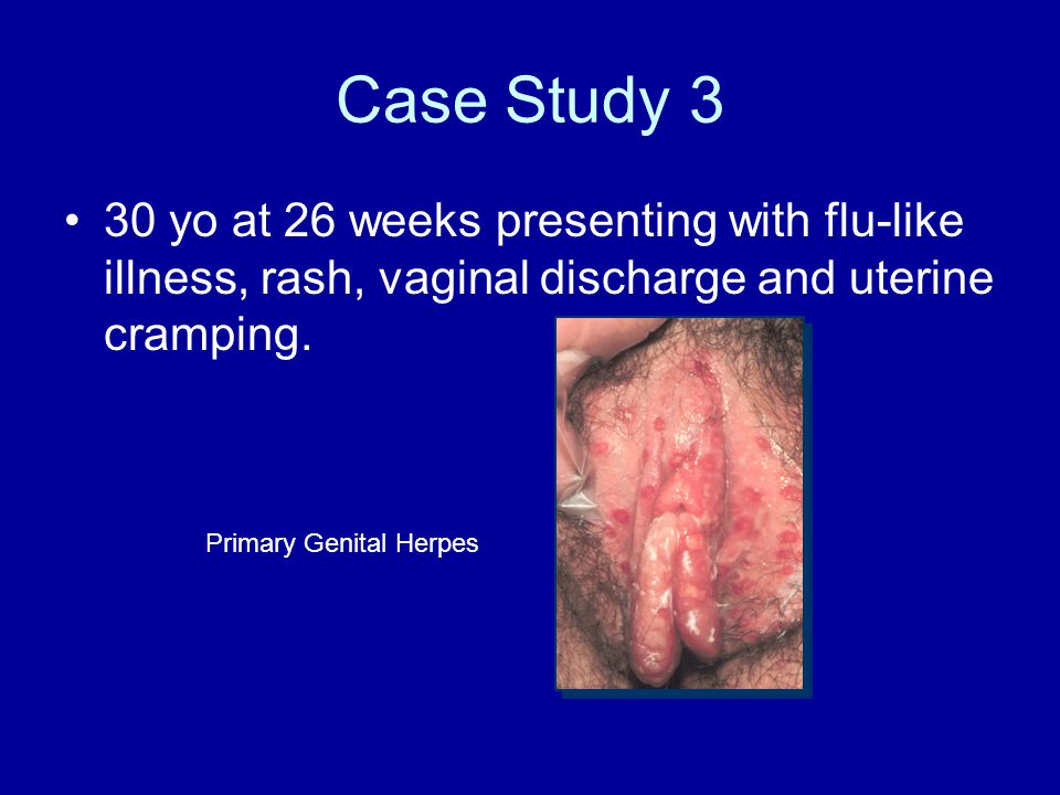 Vaginal discharge and cancer