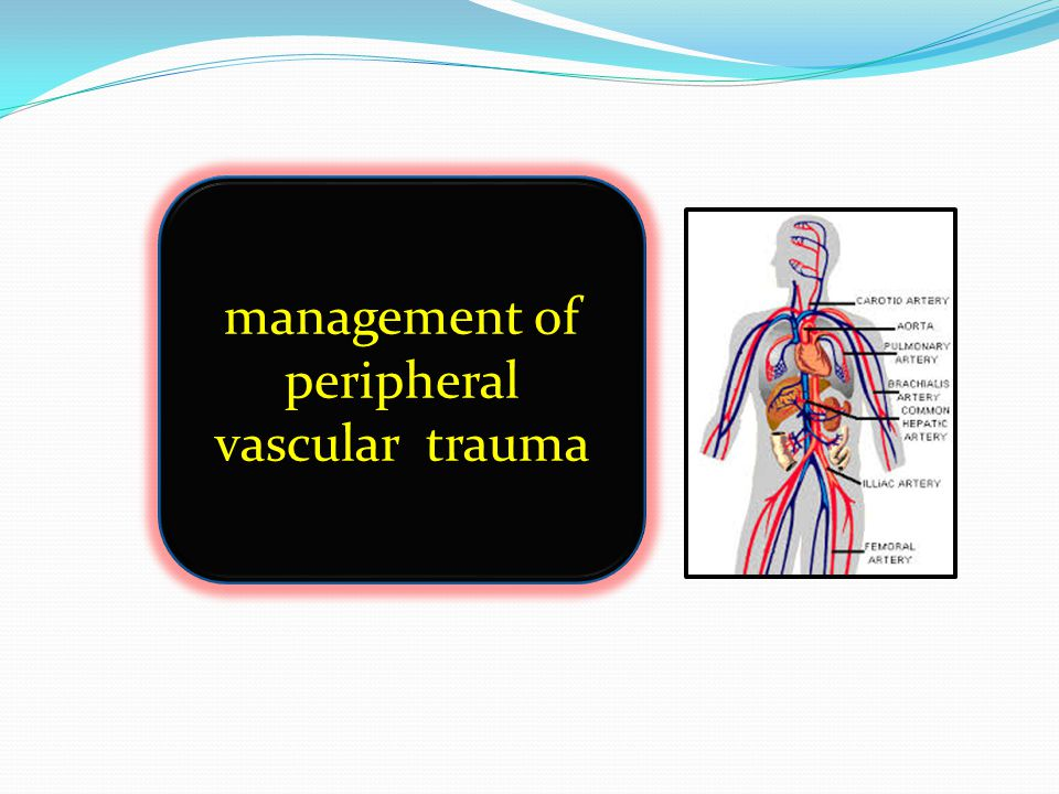 management of peripheral vascular trauma