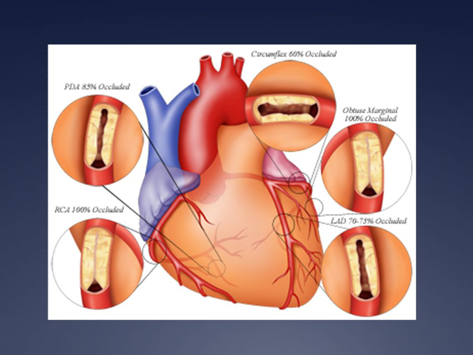 Acute Myocardial Infarction Willis E. Godin D.O., FACC. - ppt download