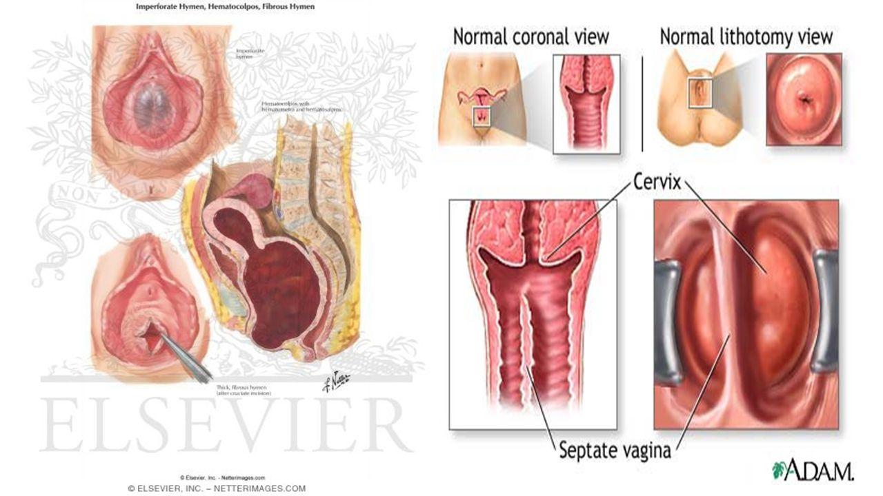 adolescent pelvic pain - ppt video online download