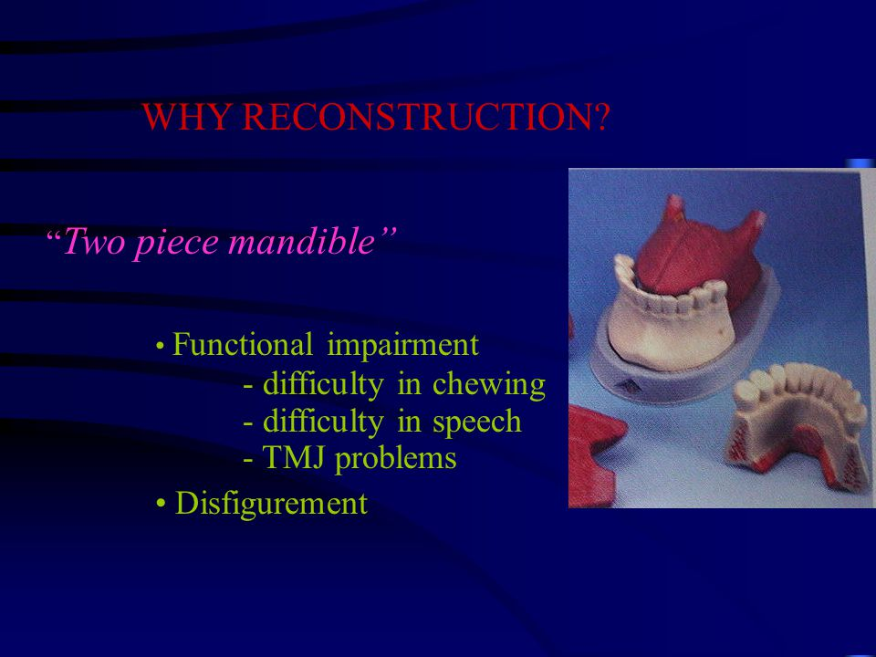 WHY RECONSTRUCTION.