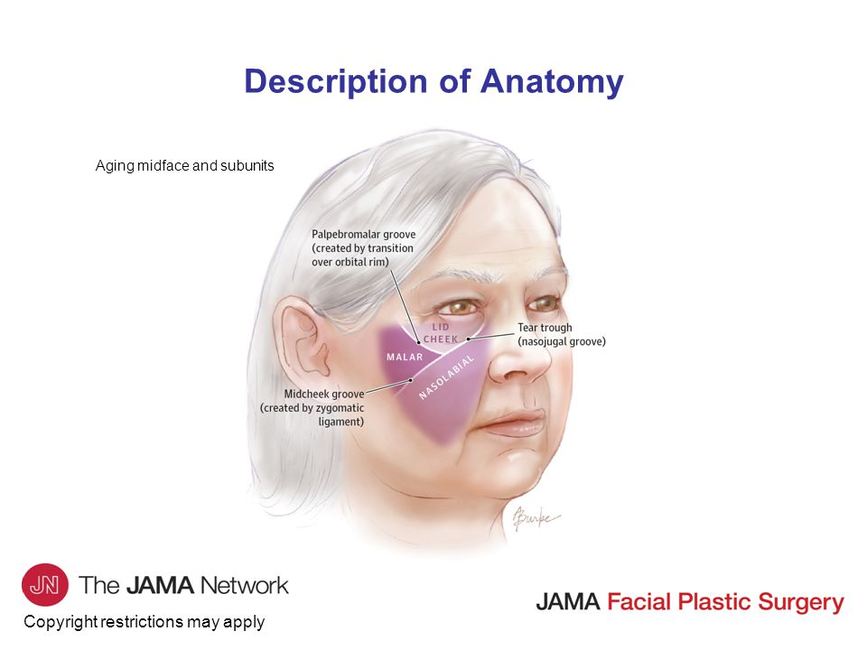 Copyright restrictions may apply JAMA Facial Plastic Surgery