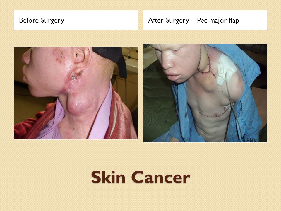 Skin Cancer Before SurgeryAfter Surgery – Pec major flap