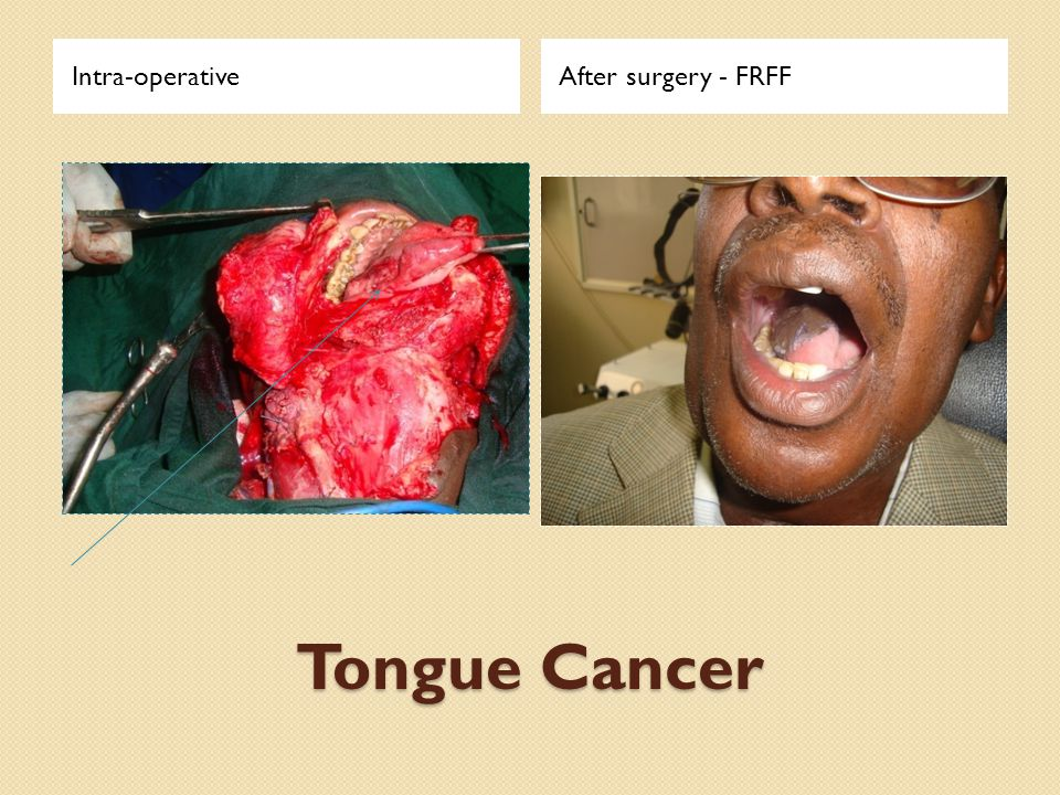 Tongue Cancer Intra-operativeAfter surgery - FRFF