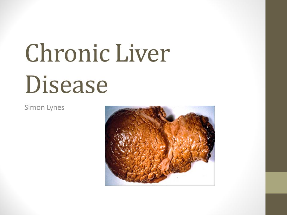 Chronic Liver Disease Simon Lynes