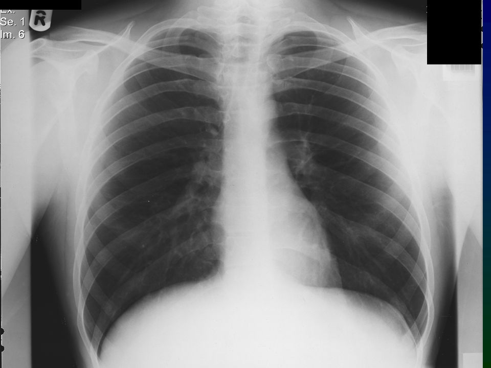 The normal chest x ray ppt video online download interpret the cxr in conjunction with the clinical findings always compare with previous cxr if available to assess for change ask yourself does my solutioingenieria Choice Image