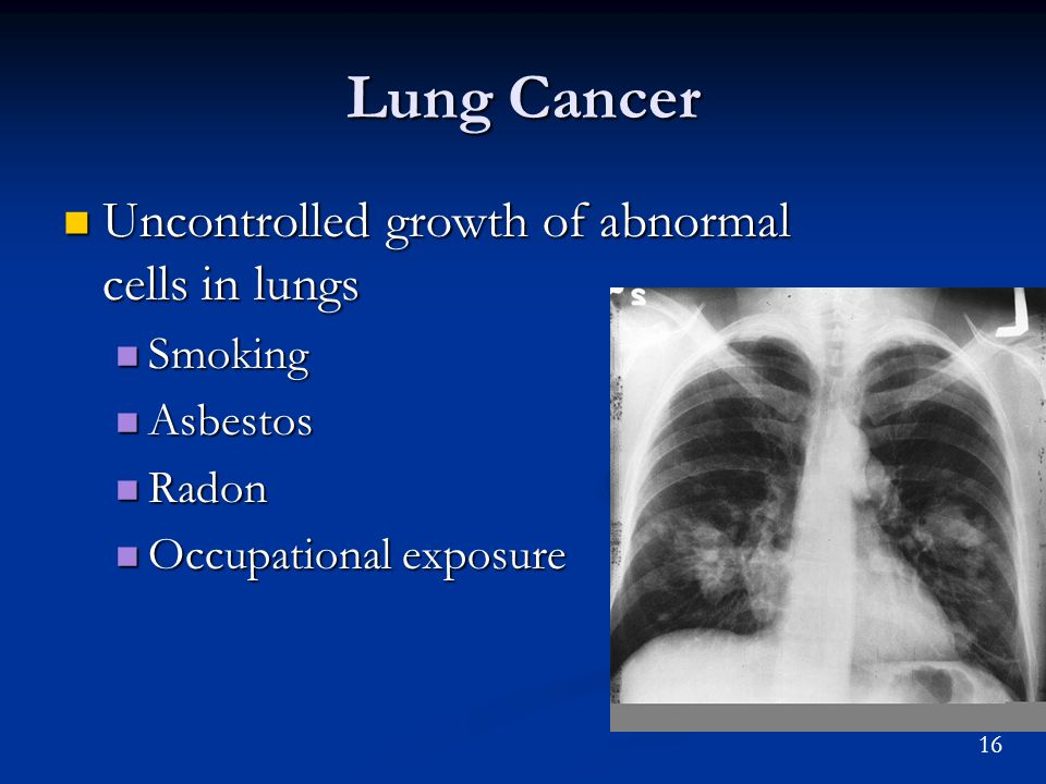 16 Lung Cancer Uncontrolled growth of abnormal cells in lungs Uncontrolled growth of abnormal cells in lungs Smoking Smoking Asbestos Asbestos Radon Radon Occupational exposure Occupational exposure