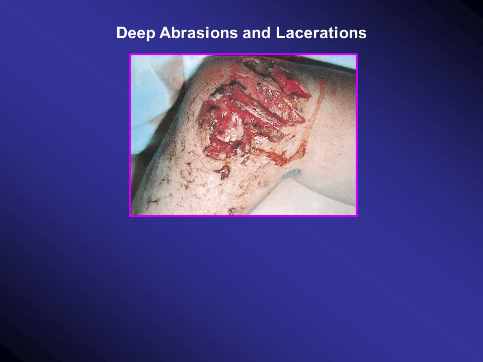 Deep Abrasions and Lacerations