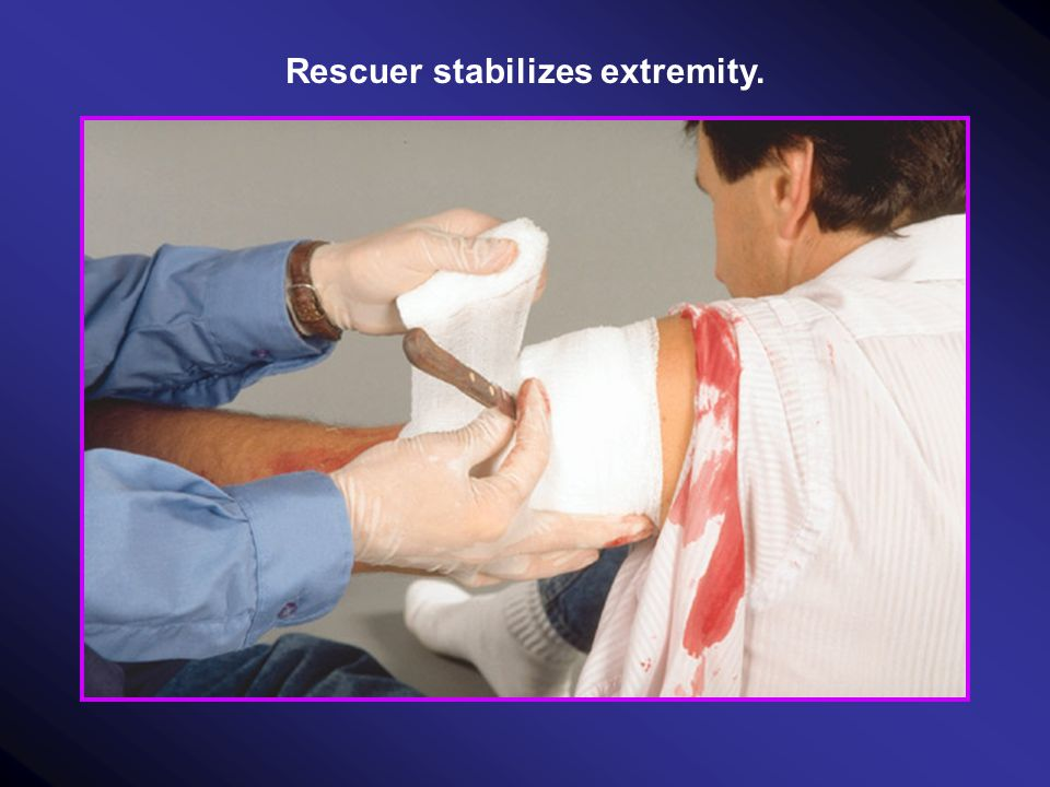 Rescuer stabilizes extremity.