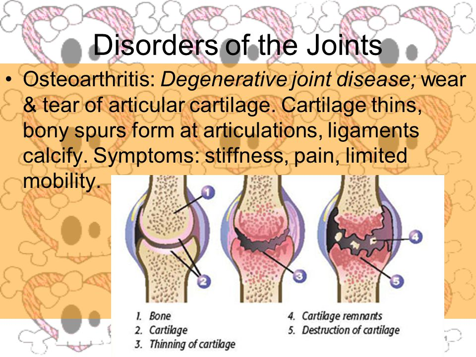 Disorders of the Joints Osteoarthritis: Degenerative joint disease; wear & tear of articular cartilage.