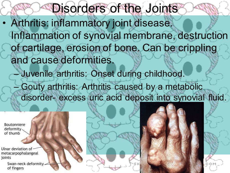 Disorders of the Joints Arthritis: inflammatory joint disease.
