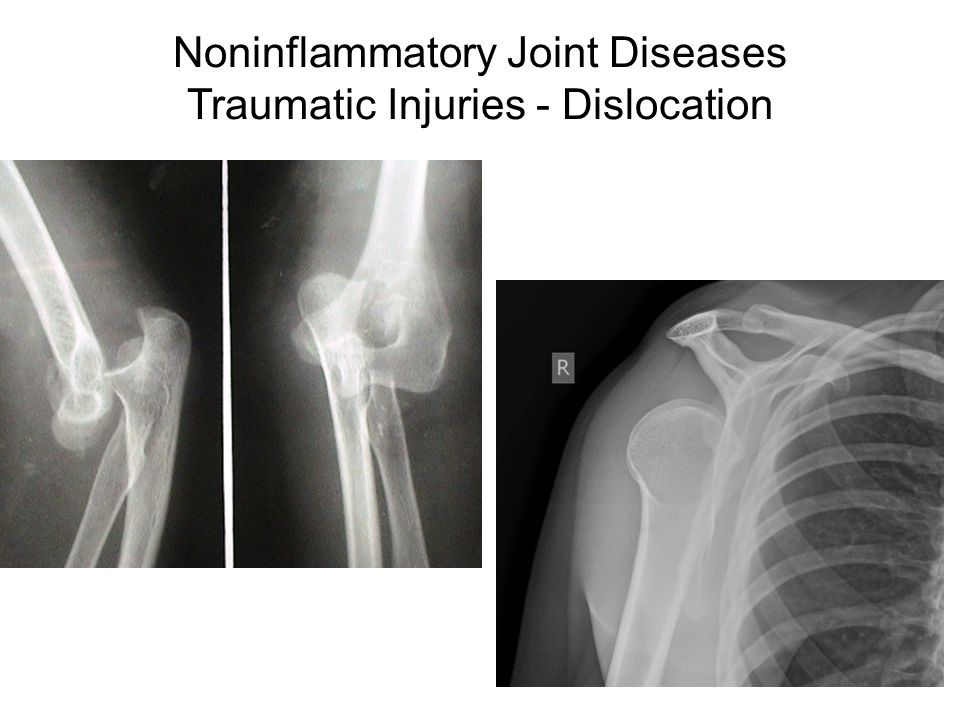 Noninflammatory Joint Diseases Traumatic Injuries - Dislocation