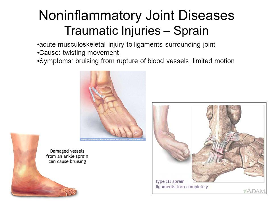 Noninflammatory Joint Diseases Traumatic Injuries – Sprain acute musculoskeletal injury to ligaments surrounding joint Cause: twisting movement Symptoms: bruising from rupture of blood vessels, limited motion